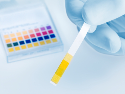 Urinary Indicant pH Test